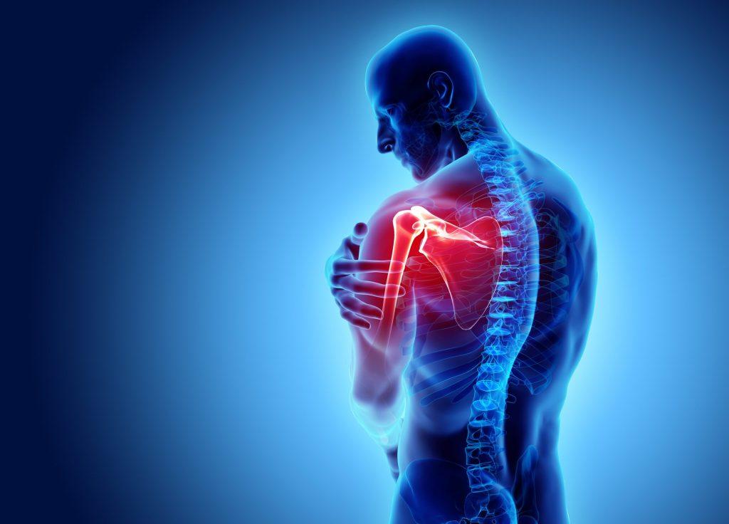 Dolore alla spalla: 4 possibili cause legate all'età - Ohga!