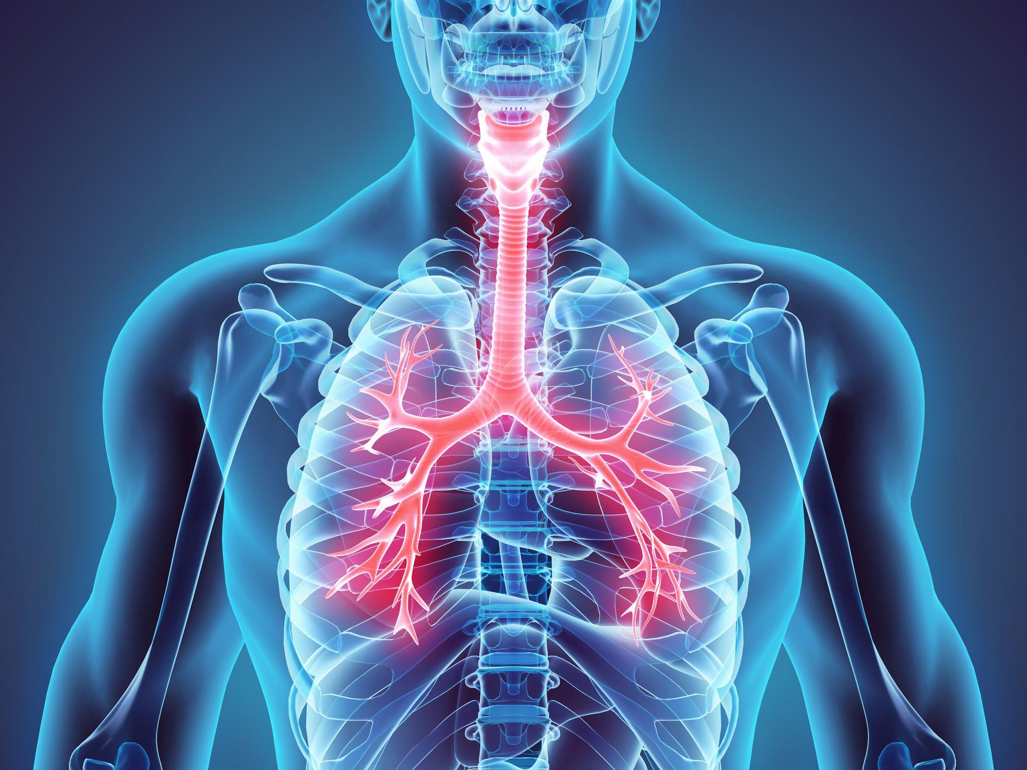 Malattia infiammatoria pelvica (PID)