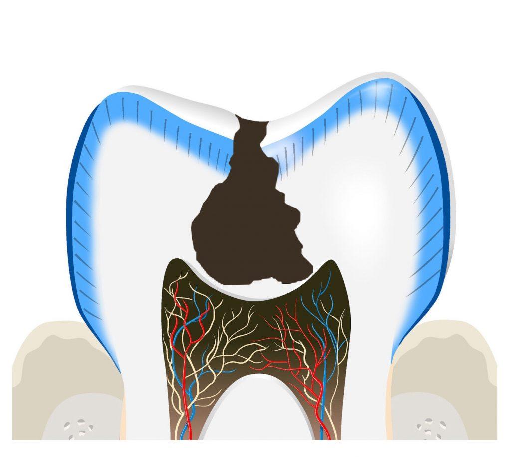 carie-otturazione-dentale