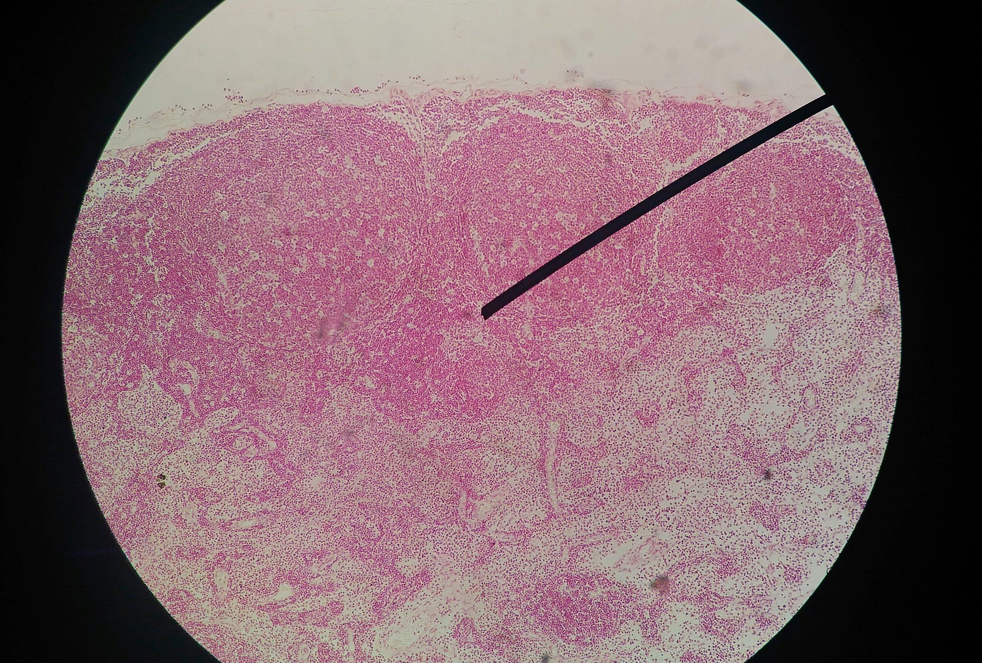 Papilloma virus uomo esame, Papilloma uomo esame. Rectal cancer mri staging