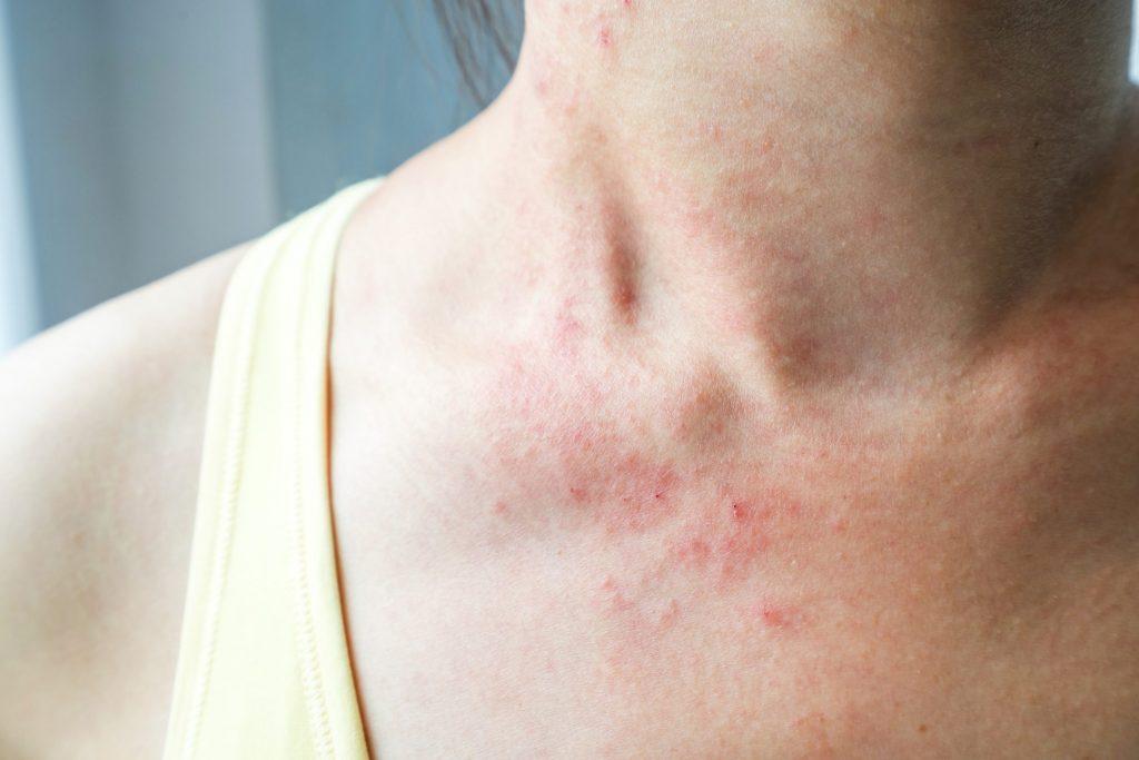 effetti collaterali del bactrim