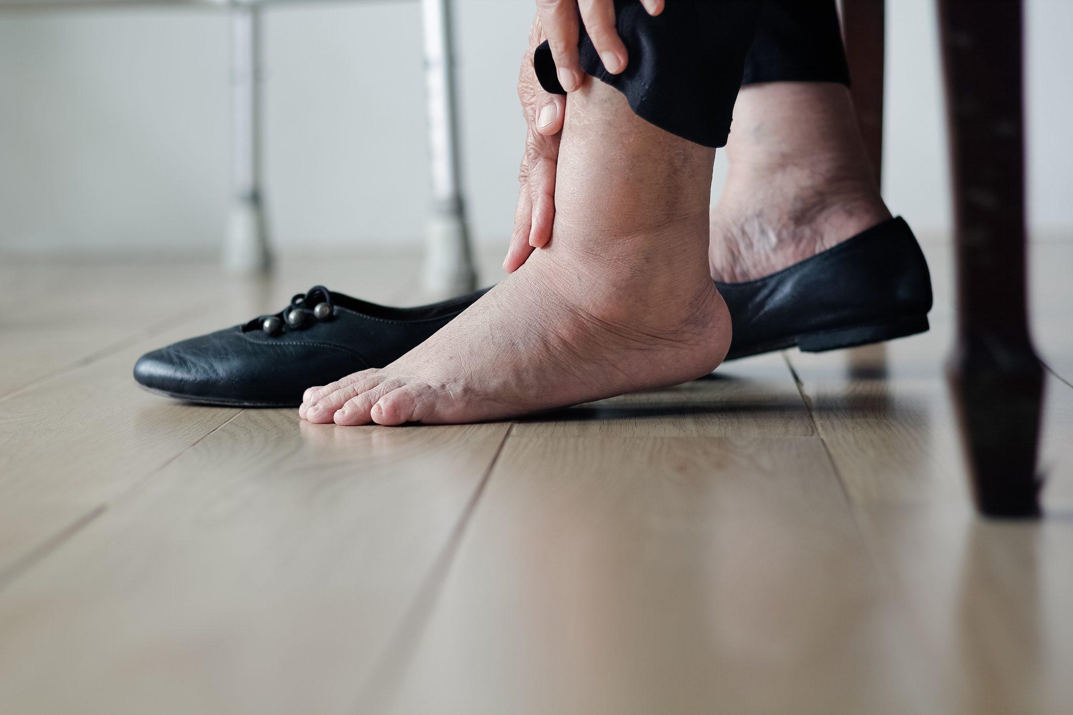 Caviglie gonfie: sintomi, cause e rimedi | Ohga!