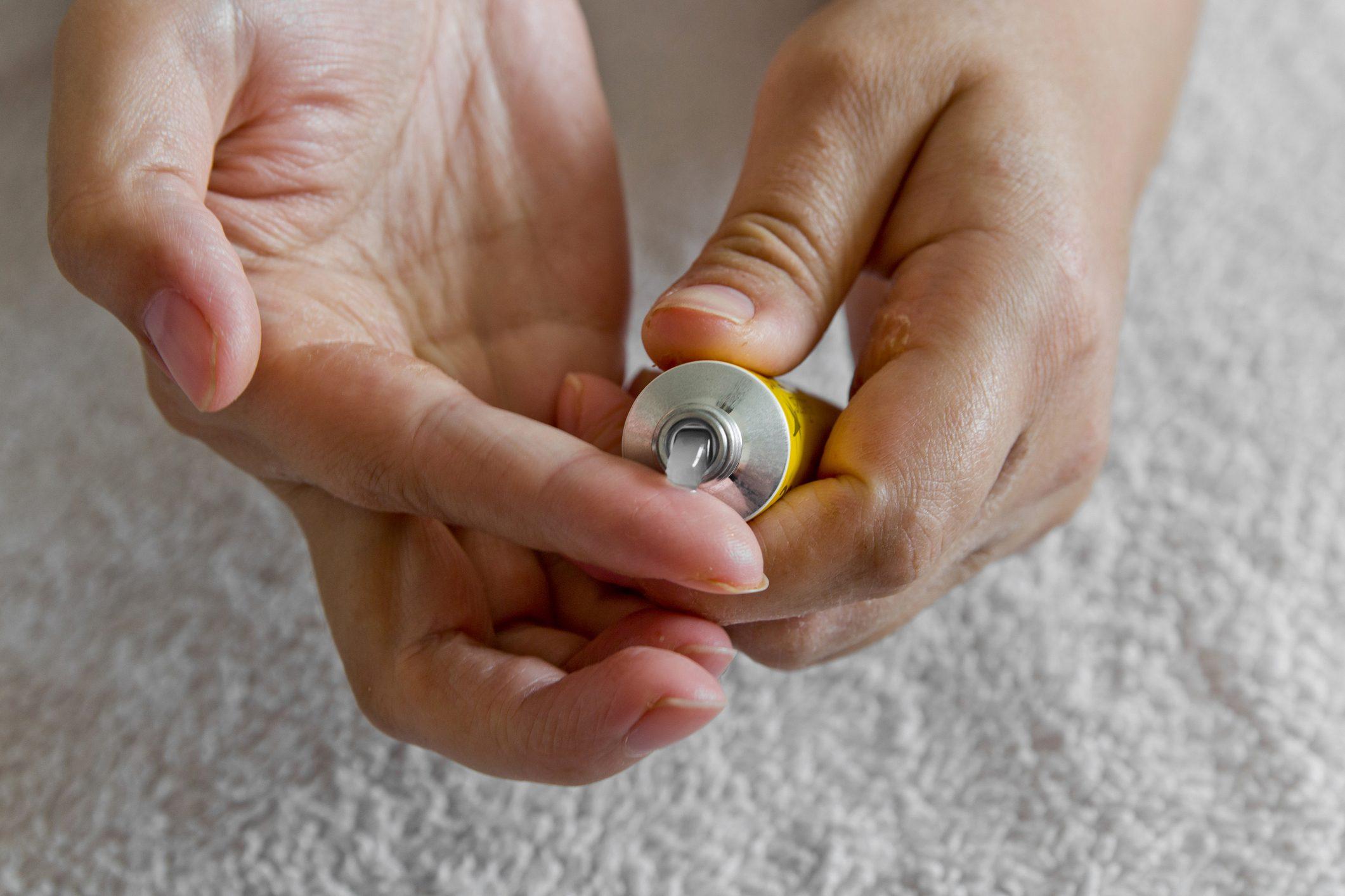 rimedio domestico per linfezione della pelle pruriginosa