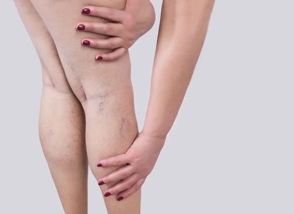gambe gonfie e perdita di peso