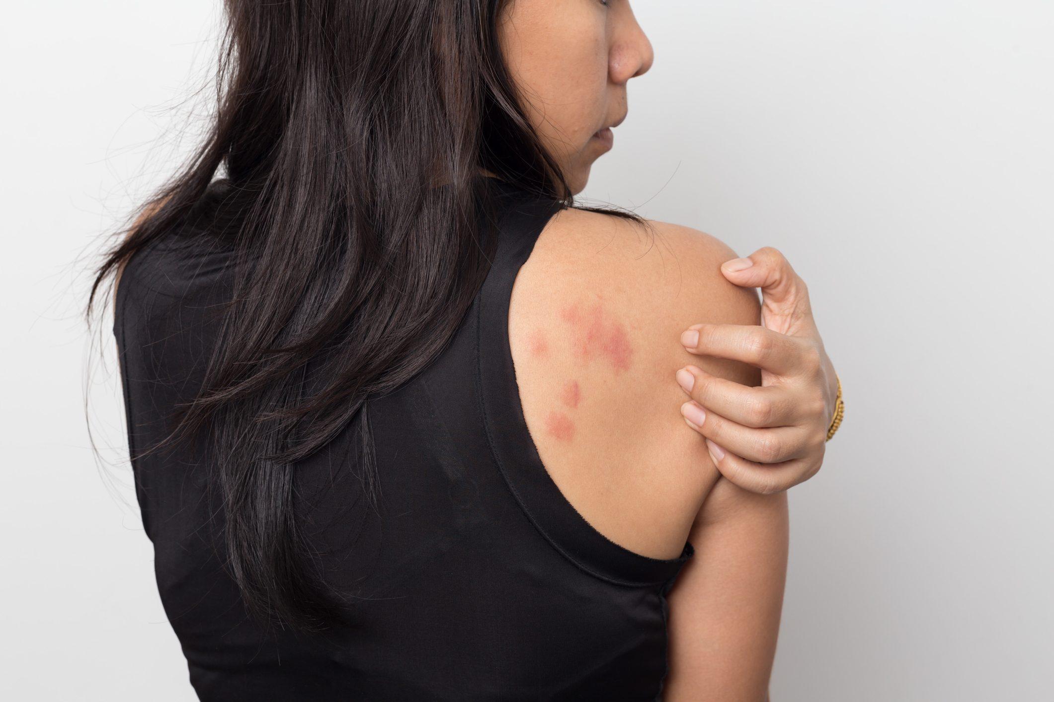 infezione della pelle da acari della polvere