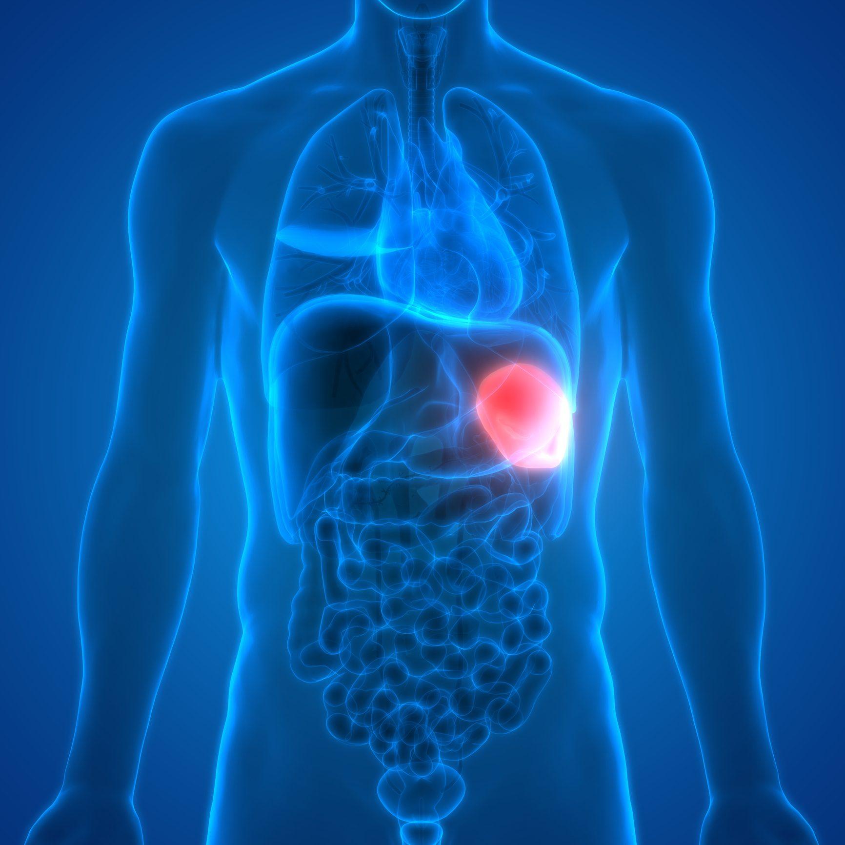 la perdita di peso può causare linfonodi ingrossati
