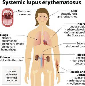 malattia lupus è mortale