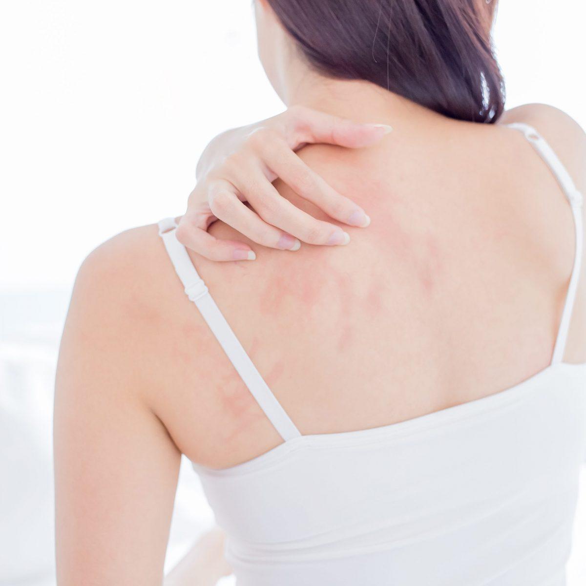 cattiva infezione batterica della pelle