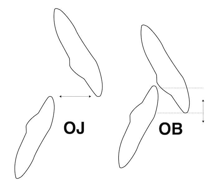 overjet-overbite