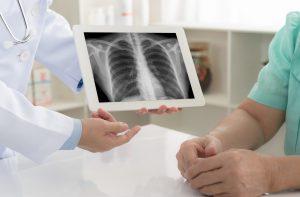 radiografia-torace